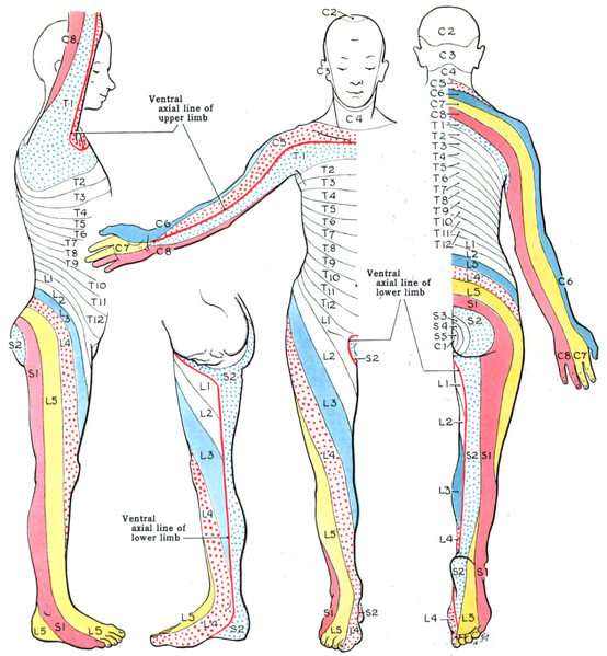 referred pain areas